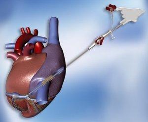 Cardioplegia Cannulae from Maquet