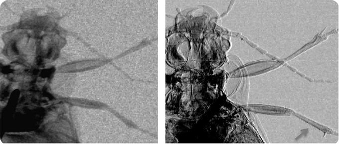 ground beetle x-ray