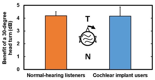cochlear implant graph