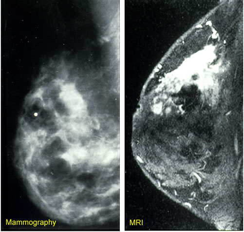 Example breast imaging technology