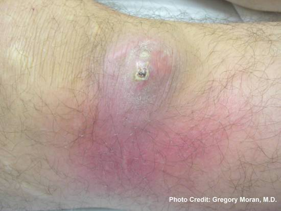 Photograph depicted a cutaneous abscess, which had been caused by methicillin-resistant Staphylococcus aureus bacteria, referred to by the acronym MRSA. Photo credit: Gregory Moran, M.D.