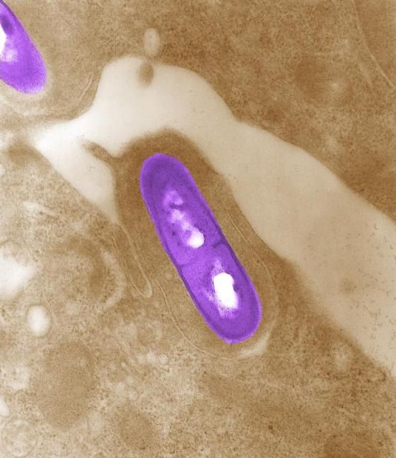 Electron micrograph of a Listeria bacterium in tissue. Listeria monocytogenes is the infectious agent responsible for the food borne illness Listeriosis. In the United States, an estimated 2,500 persons become seriously ill with listeriosis each year. Of these, 500 die. Image Credit: CDC/ Dr. Balasubr Swaminathan; Peggy Hayes