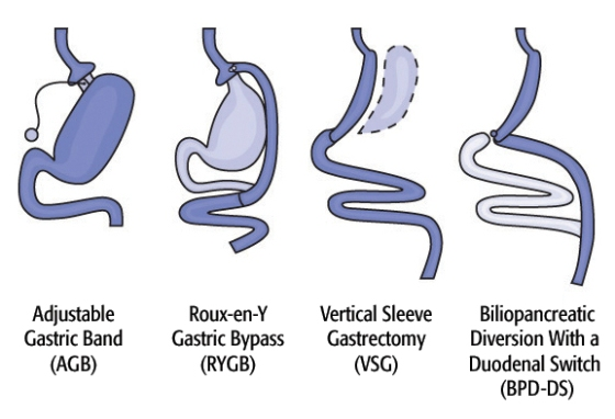 Diagram of Surgical Options. Image credit: Walter Pories, M.D. FACS.