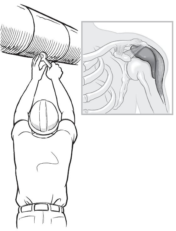 The rotator cuff is a group of four muscles and their tendons that wrap around the front, back, and top of the shoulder joint. These let the shoulder function through a wide range of motions. Stress on the shoulder may cause them to tear, which can make routine activities difficult and painful.