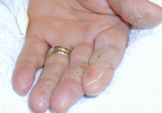 Optician - non-dominant hand dermatitis (allergy to ethyl acrylate)