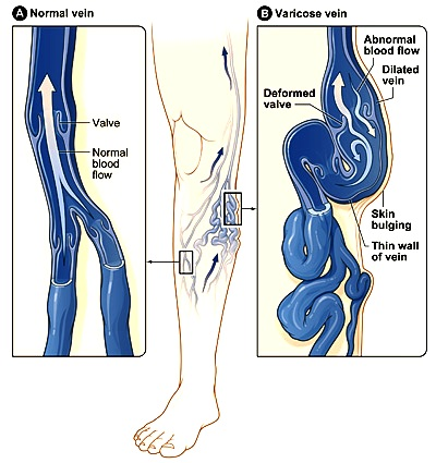 Riabilitazione dopo operazione su eliminazione di una posizione di vena