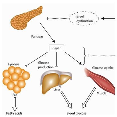 insulina: