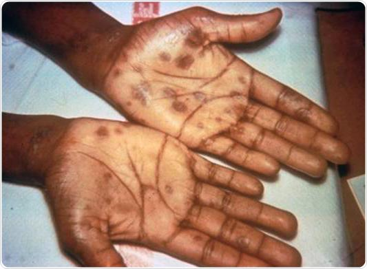 Secondary stage syphilis sores (lesions) on the palms of the hands. Referred to as 'palmar lesions.'
