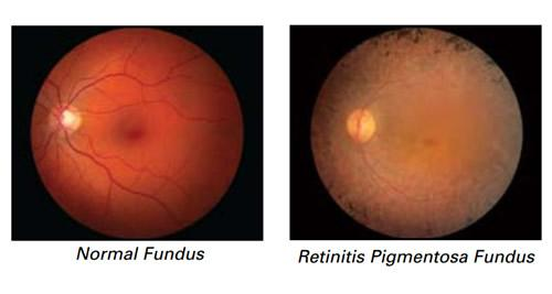 Resultado de imagen de pigmentosa retinitis