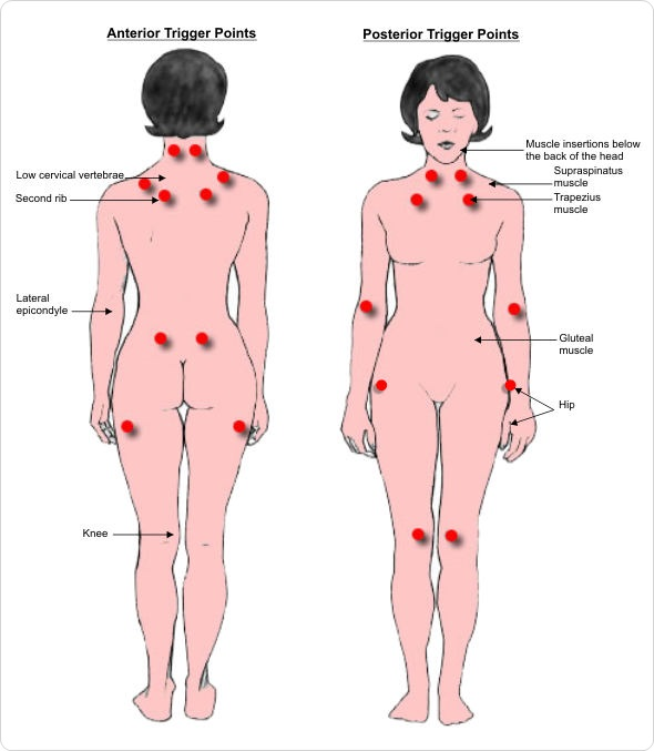 Fibromyalgia Trigger Tender Points