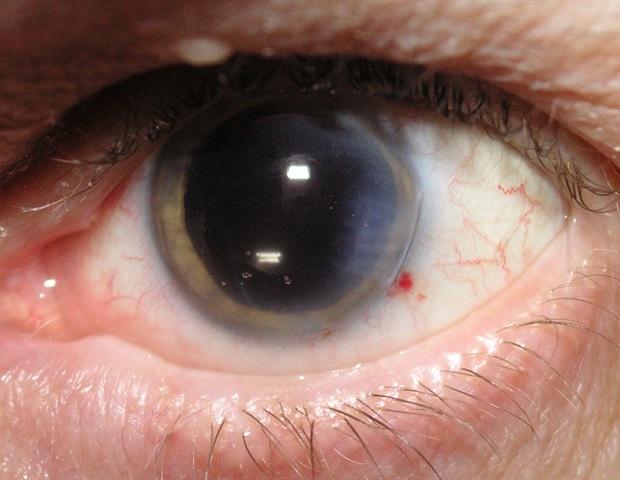 anterior eye disease and therapeutics az pdf