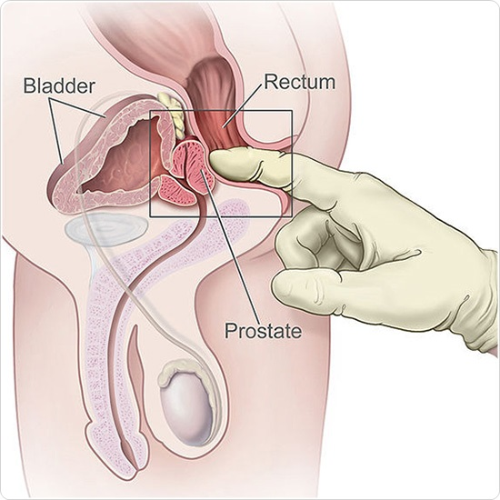 Rectal examination of the prostate