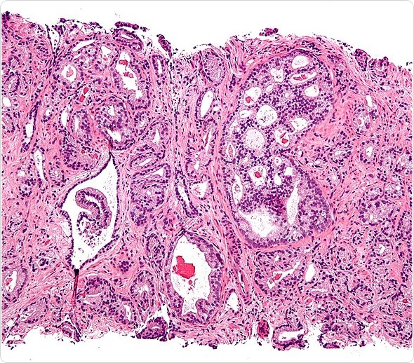 Micrograph showing prostatic acinar adenocarcinoma (the most common form of prostate cancer) Gleason pattern 4. H&E stain. Prostate currettings.