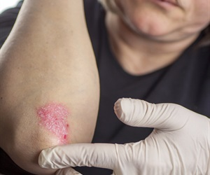 Lipid that helps keep skin cell turnover on track may aid in psoriasis