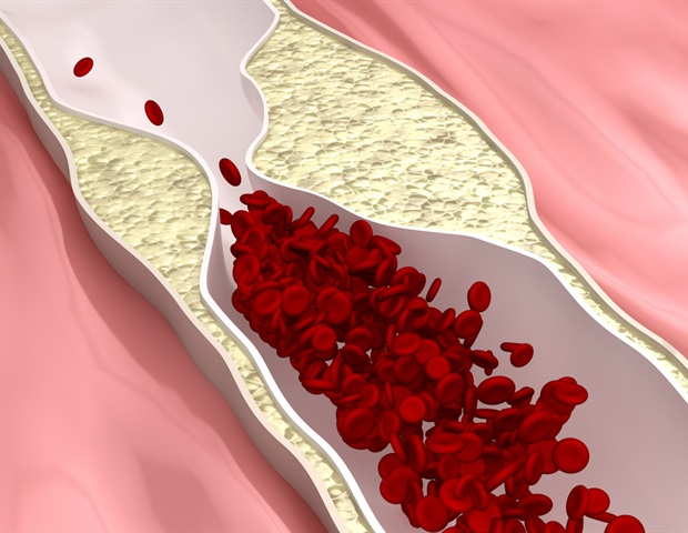 CARD8 protein regulates inflammatory process in atherosclerosis study shows – News-Medical.Net