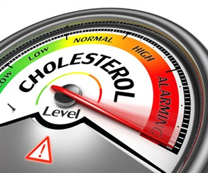 Research reveals how a small molecule helps remove excess cholesterol