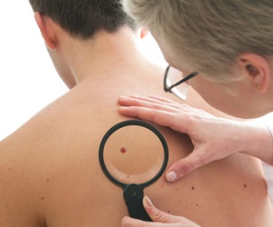 Study: States with lower incidence of melanoma have higher mortality rates