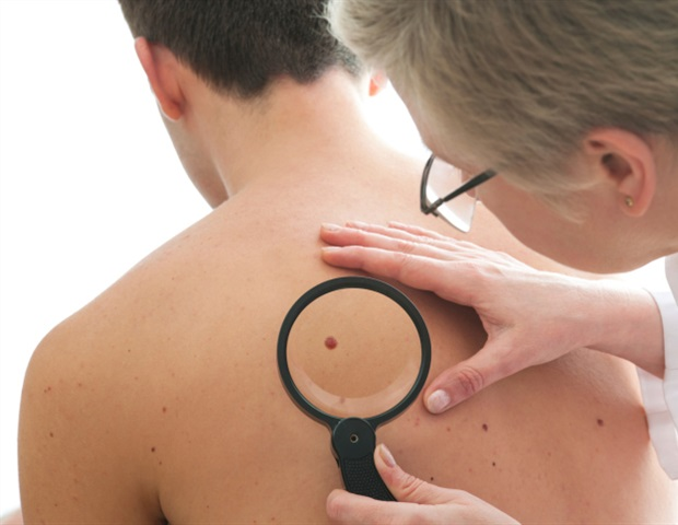 Johns Hopkins researchers link a gene to melanoma growth and spread
