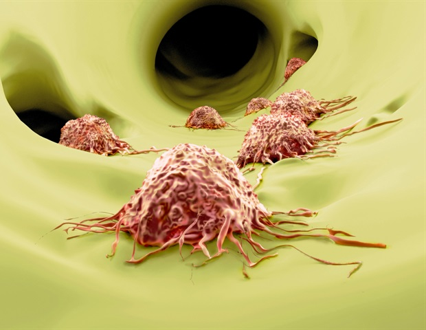 Research findings may provide new treatment for prevention of cancer metastasis