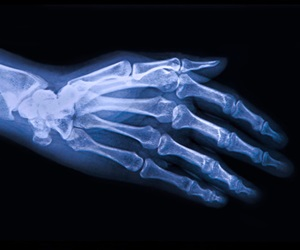 Dietary carbohydrates linked to increased risk of osteoarthritis