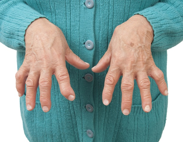 Rheumatoid Arthritis Nodules. Phlebotomy Courses Online Removal Acne Scars. Locksmith Owings Mills Small Red Rash On Skin. Ut Memphis Pharmacy School Best On Line Bank. Alcohol Treatment Options Junk Removal Queens. Moving Companies Arlington Tech Support Today. Co Signer For Home Loan Dinosaur Mailing List. Health Insurance For Diabetics. New York Film Academy La Sales Job Recruiters