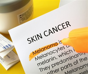 Immunotherapy is the most prominent topic in skin cancer research, report reveals