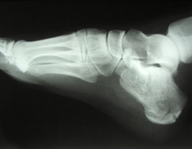 que medicamento se puede tomar para la osteopenia