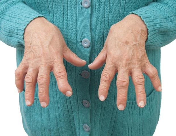 Artrites
