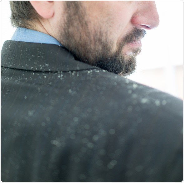 Does dandruff cause psychological distress? An interview