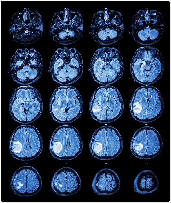 various brain tumor detection techniques essay Hms were developed for segmentation of mri images by using different tools and techniques : brain tumor detection, magnetic resonance image, edema, image .
