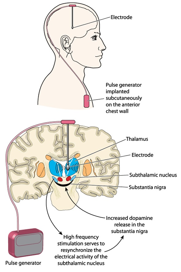 Deep brain stimulation using an implanted pulse generator