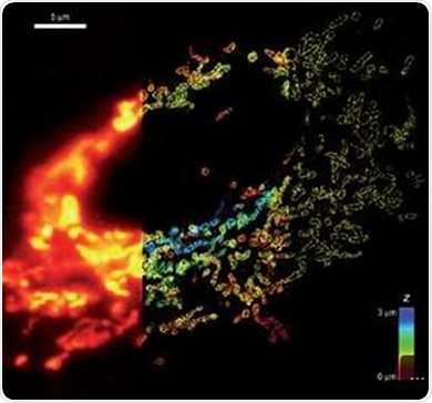 Whole cell 3D super-resolution imaging by STORM