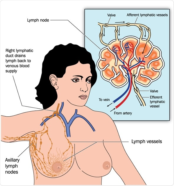 Axillary Lymph Nodes And Breast Cancer