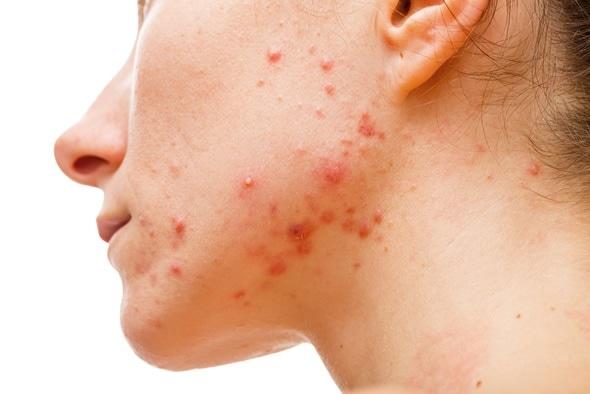 Kuvahaun tulos haulle acne