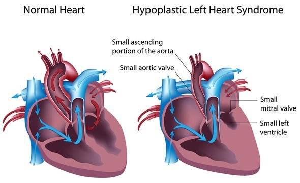 Causes And Symptoms Of Hypoplastic Left Heart Syndrome