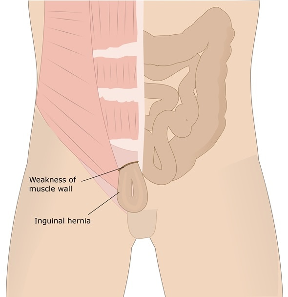 Inguinal Hernias In Children