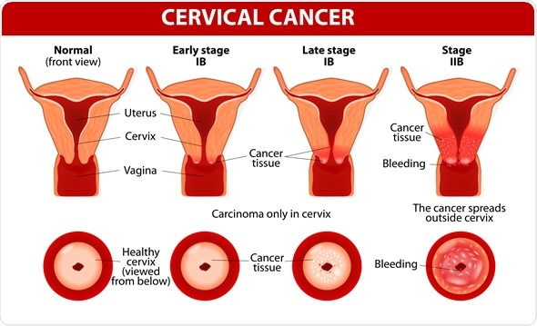 Hpv womb cancer. Translation of