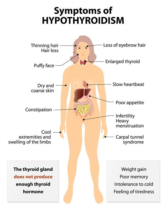 hyperthyroidism diagnosis, Human Body