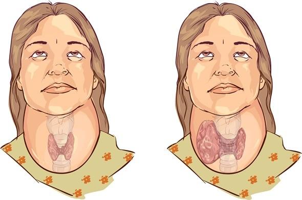 goiter (goitre), Cephalic vein