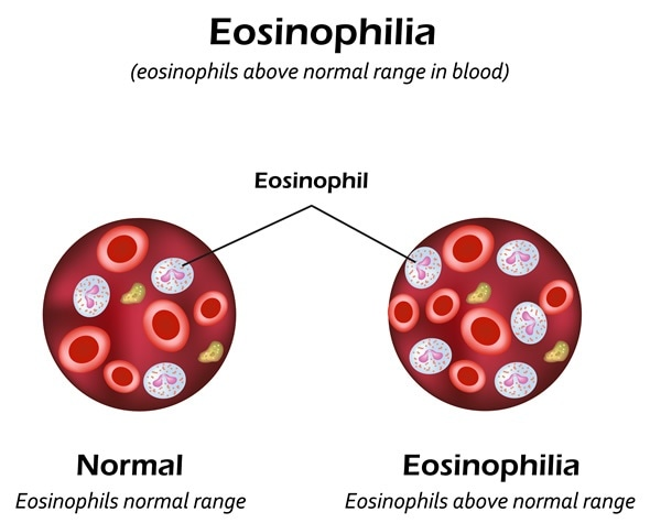 What Is Eosinophilia