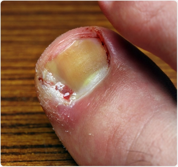 Types Of Nail Disease