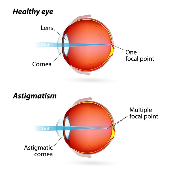astigmatism - common eye condition, Skeleton