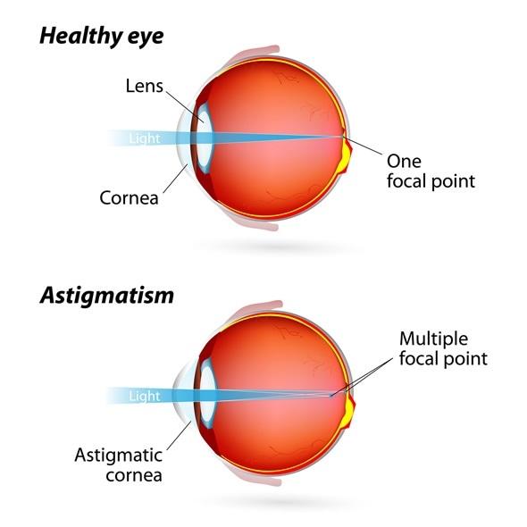 astigmatism - common eye condition, Skeleton