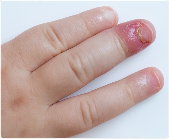 Paronychia, swollen finger with fingernail bed inflammation due to bacterial infection on a toddlers hand. - Image Copyright: zlikovec / Shutterstock