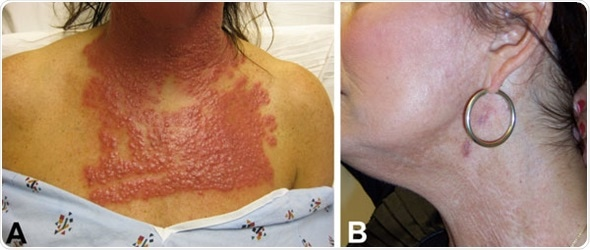 A) Neck and chest of a 53-year-old woman (case-patient 1) 14 days after fractionated CO2 laser resurfacing. B) Neck of the patient after 5 months of multidrug therapy and pulsed dye laser treatment. Image Credit: CDC