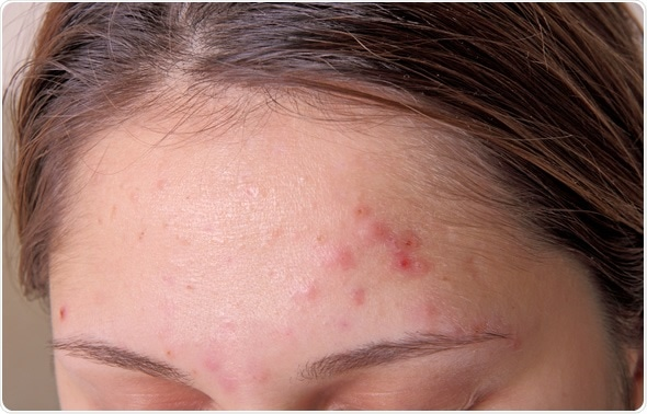 Acne on forehead. Image Copyright: TRIG / Shutterstock