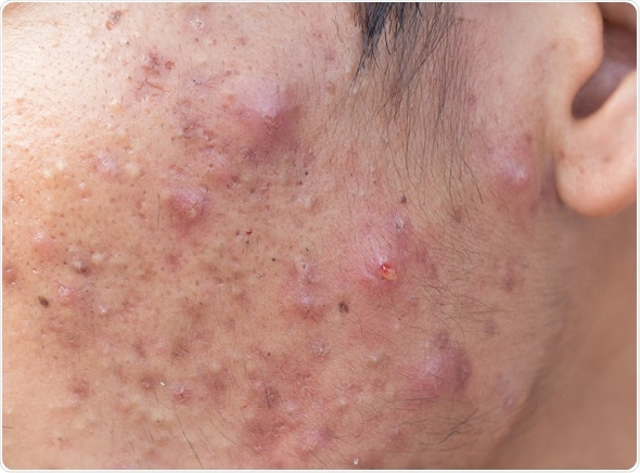 Man with problematic skin and scars from acne (scar). Image Copyright: frank60 / Shutterstock