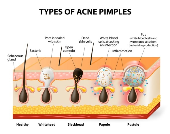 Types of acne pimples. Healthy skin, Whiteheads and Blackheads, Papules and Pustules - Image Copyright: Designua