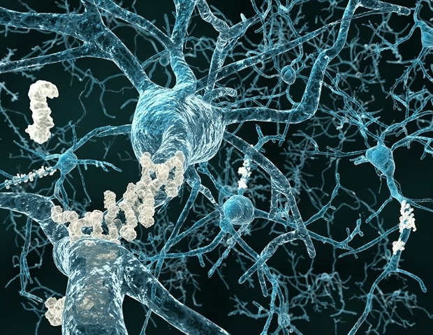 Neurogenesis plays an underappreciated role in the progression of Alzheimer's