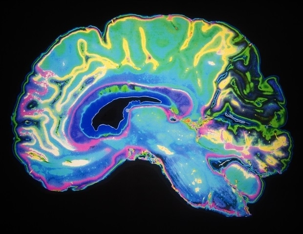 Sex-differences in brain development linked with psychiatric and neurodevelopmental disorders